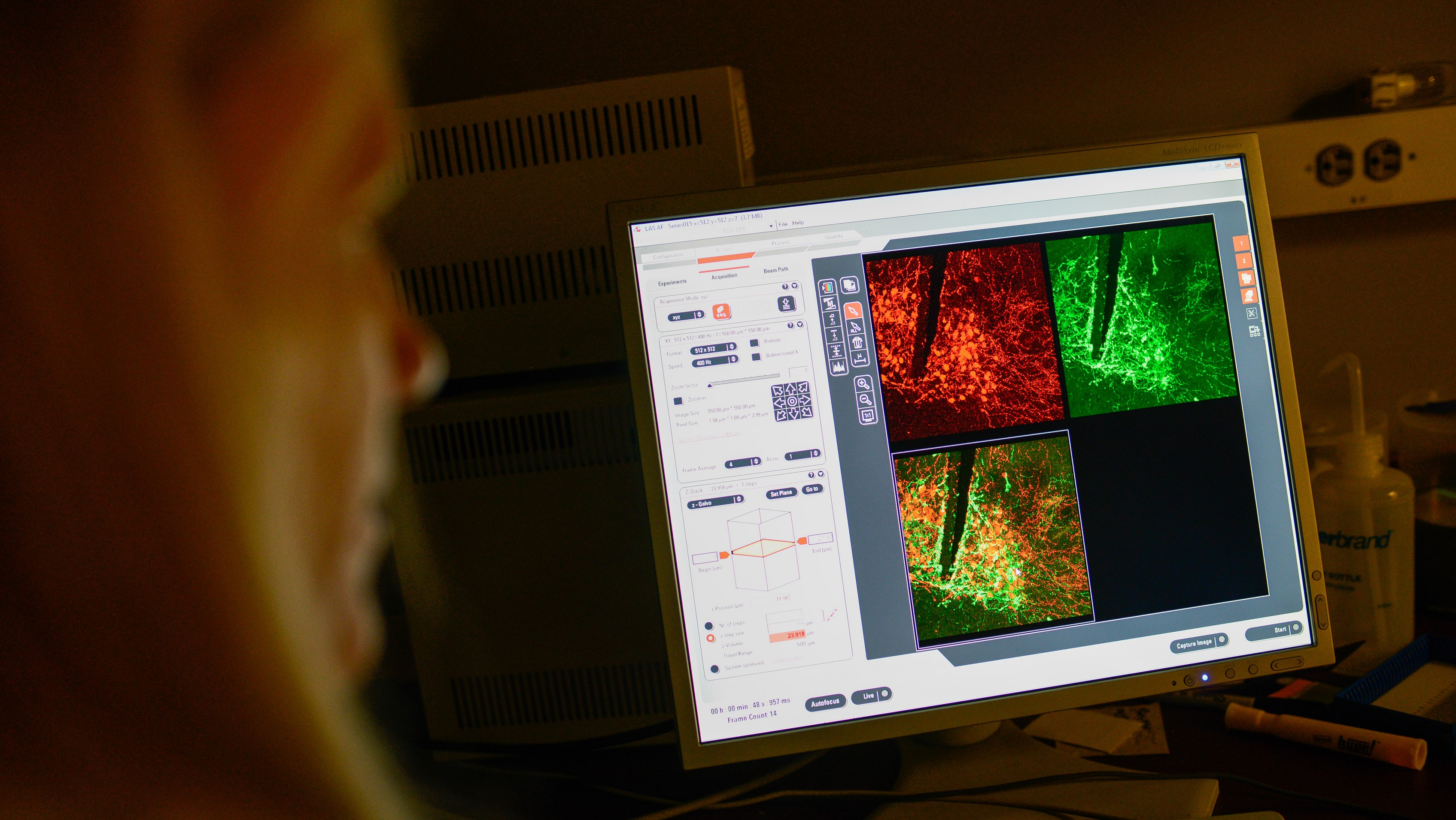 Heather Patisaul studies how chemicals in the environment affect us. In this image, she's examining neurons in the brain of a laboratory rat colored by a process called immunohistochemistry.